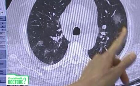 Ce trebuie să facă pacienții după COVID ca să nu rămână cu plămânii afectați. Explicațiile specialiștilor