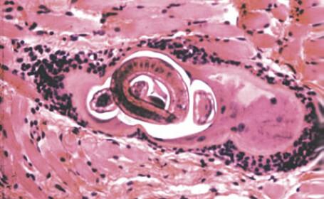 Trichinela