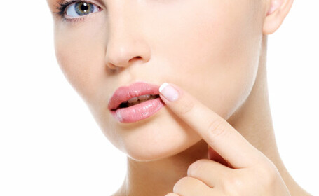 Cum previi herpesul bucal?