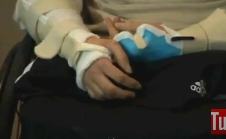 transplant de maini, Brendan Marrocco