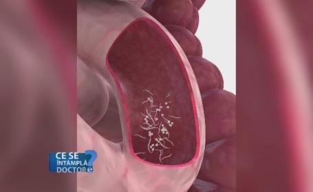 Sfaturi pentru prevenirea parazitilor intestinali la copii. Cat de usor se pot ascunde aceste probleme