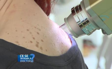 De ce nu este recomandat să ignorăm alunițele și petele apărute pe piele