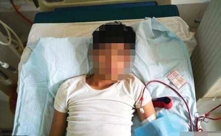 Tânărul care şi-a vândut rinichiul pentru un iPhone, imobilizat la pat
