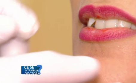 Buzele pot oferi primul semnal al unei boli grave. Când trebuie să mergi la medic