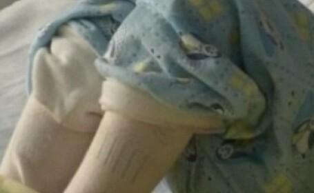 Fetita de 2 ani, batuta cu cruzime, nu se mai intoarce in iadul de acasa