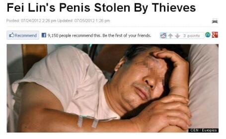 Caz bizar in China. Un barbat sustine ca hotii i-au taiat penisul in somn