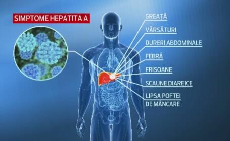 A venit vara si va spunem cum sa va feriti de hepatita A. Ce ne recomanda medicii