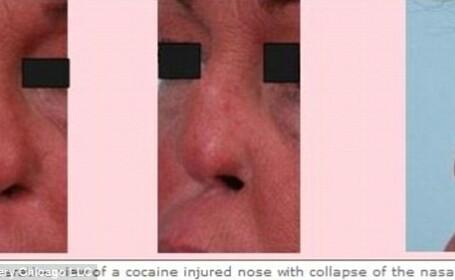O femeie a apelat la operatie pentru a-si repara nasul distrus de cocaina. Motivul pentru care a dat medicul in judecata