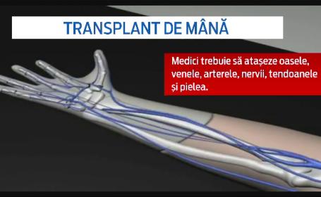 transplant mana - stiri