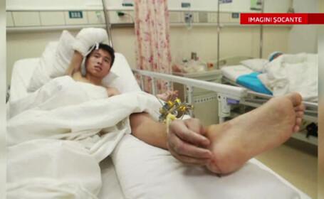 mana transplantata pe picior China
