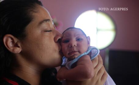 Primul nou-nascut din Europa cu microcefalie provocata de Zika. \