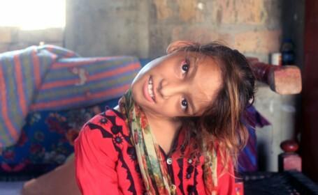 Cum arată fata care a rămas cu capul îndoit la 90 de grade. Boala rară de care suferă. FOTO