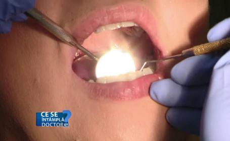 Pericolul la care ne expunem dacă nu folosim produsele de igienă dentară potrivite