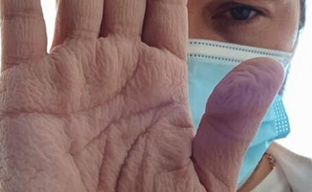 Așa arată mâna unui chirurg după o operație de 4 ore, la aproape 30 de grade. Cum a salvat în ultima clipă viața unui om
