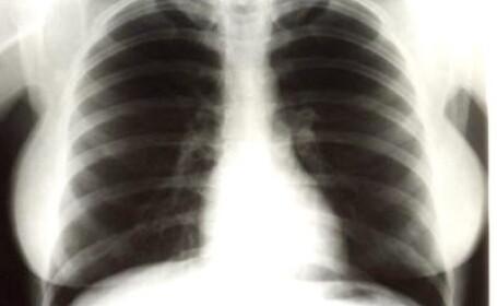 Radiografii pulmonare Marlyn Monroe