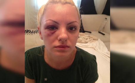 Alexandra Stan a fost supusa unei investigatii la tomograf. Se plange inca de dureri mari de cap