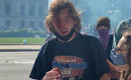 Un tânăr din SUA a rămas fără un ochi după ce a fost lovit de o grenadă a poliției