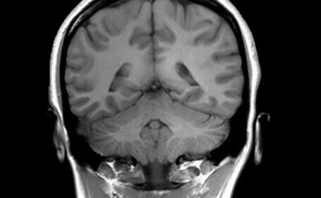 Studiu: Supraviețuitorii Covid pierd substanță cenușie din creier. Care sunt efectele