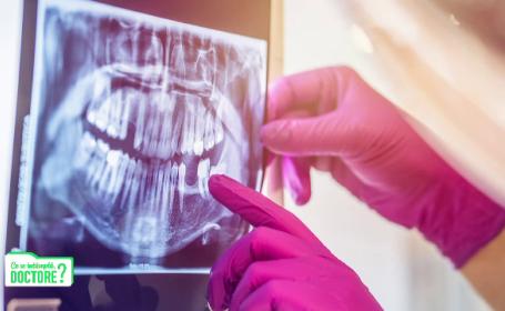 De ce nu este bine să fumăm și să mâncăm lactate după intervenții în cavitatea orală