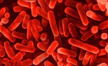 Legioneloza, cea mai noua boala monitorizata de specialisti
