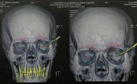 Un barbat a trait timp de 18 ani cu un cutit in cap, dupa ce a fost implicat intr-o bataie de strada