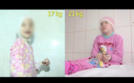 Tanara care la 19 ani cantarea doar 16 kilograme se simte tot mai bine. Fata a luat in greutate 6 kilograme