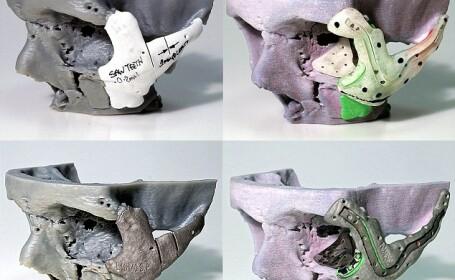 craniu 3D