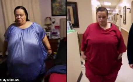 Stomacul ei are acum dimensiunile unui ou. Cum a reusit o femeie sa slabeasca 127 de kilograme intr-un an