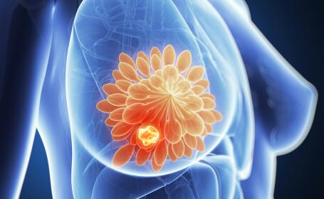 Cum influenteaza tesutul gras aparitia cancerului de san si ovarian. Avertismentul medicilor pentru femeile supraponderale