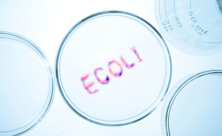 Cum poti sa te imbolnavesti de la E.coli, bacteria inofensiva din intestin. Produsele lactate de care sa te feresti