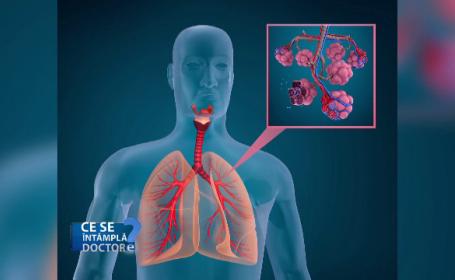 Astmul, simptome și tratament