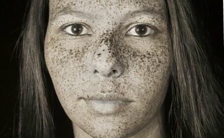 Imaginile care arată cât de mult afectează radiaţiile ultraviolete - 10