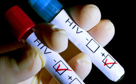 Un bărbat din Londra, a doua persoană din lume vindecată de HIV. Ce tratament a urmat