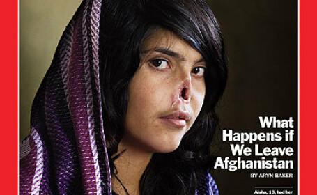 Cum arata dupa operatie Aesha, femeia careia i-a fost taiat nasul pentru ca a fugit de sotul ei
