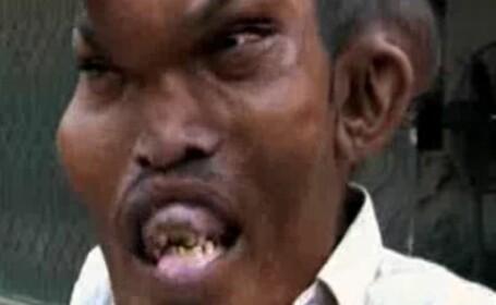 VIDEO. Povestea omului desfigurat de o boala rara. \