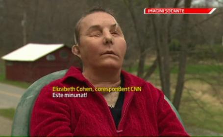 transplant de fata