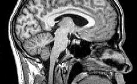 tomografie creier