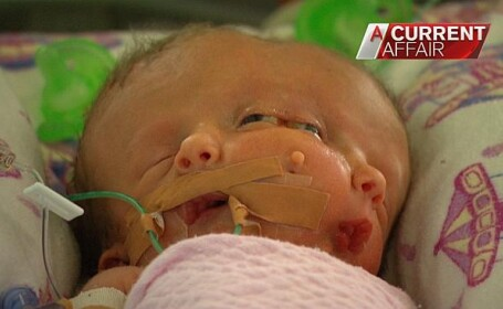 Hope si Faith, gemene siameze. Sursa foto: Channel 9, Australia