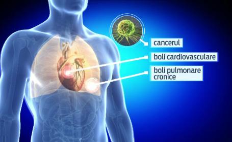42.000 de romani mor anual din cauza bolilor provocate de fumat. Cum vine statul in ajutorul celor care au acest viciu