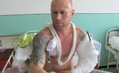 Performanta medicala la Barlad. Medicii au refacut nu doar un brat zdrobit, ci si tatuajul de pe mana