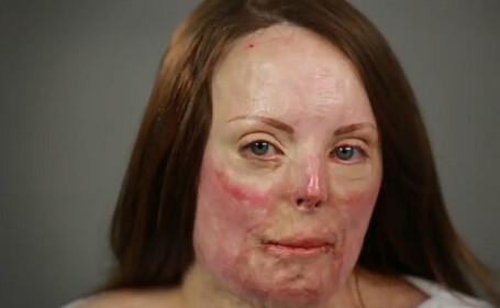 Cum se transforma o femeie cu arsuri pe 60% din suprafata pielii dupa ce este machiata de un profesionist