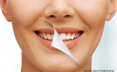 Robotii care ne pot face dinti noi, perfecti, in numai 10 minute. Proteza a devenit istorie