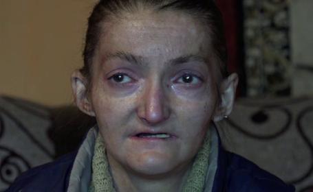 Chinul cumplit al unei femei din Alba, care sufera de o boala rara. Are nevoie de un tratament scump pentru a scapa de dureri