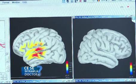 Primele simptome ale epilepsiei