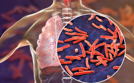 Cum poate coronavirusul să ducă la moartea a 1,4 milioane de oameni, bolnavi de tuberculoză