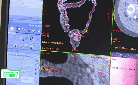 CSID. Până la vârsta de 50 de ani, o persoană din 4 are polipi în colon. Ce ne recomandă medicii