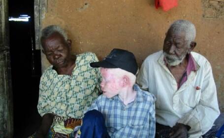 29 de albinosi au fost ucisi pentru ritualuri magice