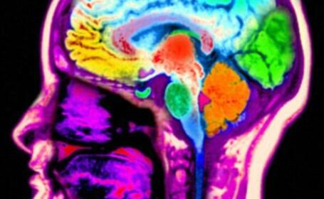 RMN creier