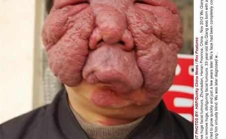 Cum arata dupa operatie barbatul caruia ii era rusine sa iasa din casa din cauza tumorilor