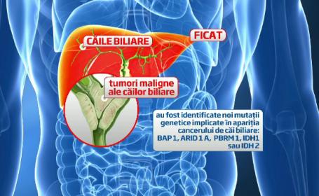 Cercetatorii de la Fundeni au descoperit 4 mutatii care favorizeaza cancerul cailor biliare